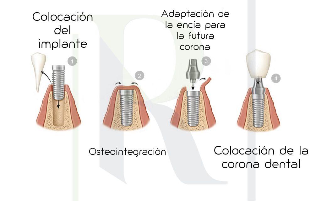 Implantes dentales Maracena Vélez Málaga