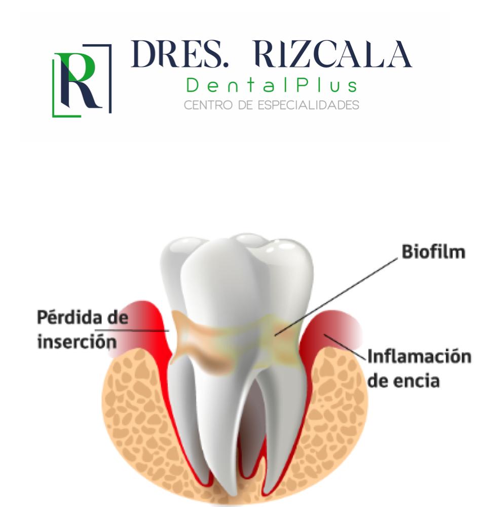 Encías y Salud Oral