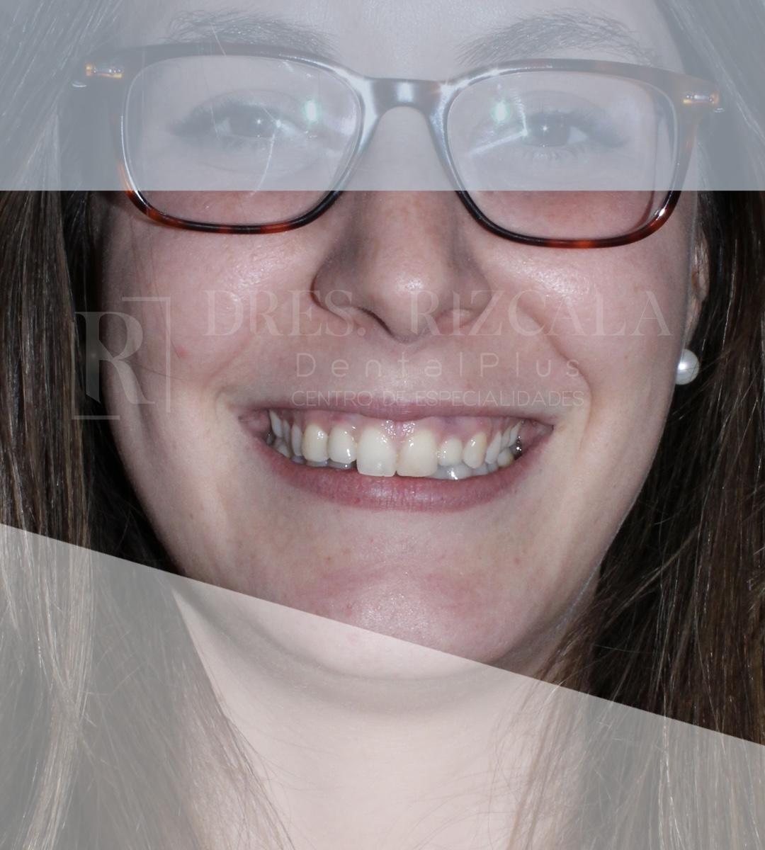 Carillas Dentales antes